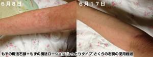 もずの魔法シリーズ+みんなの肌潤糖を使ったさくらの右腕のアトピー性皮膚炎の経過
